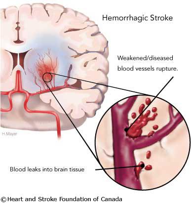 stroke_hem_web
